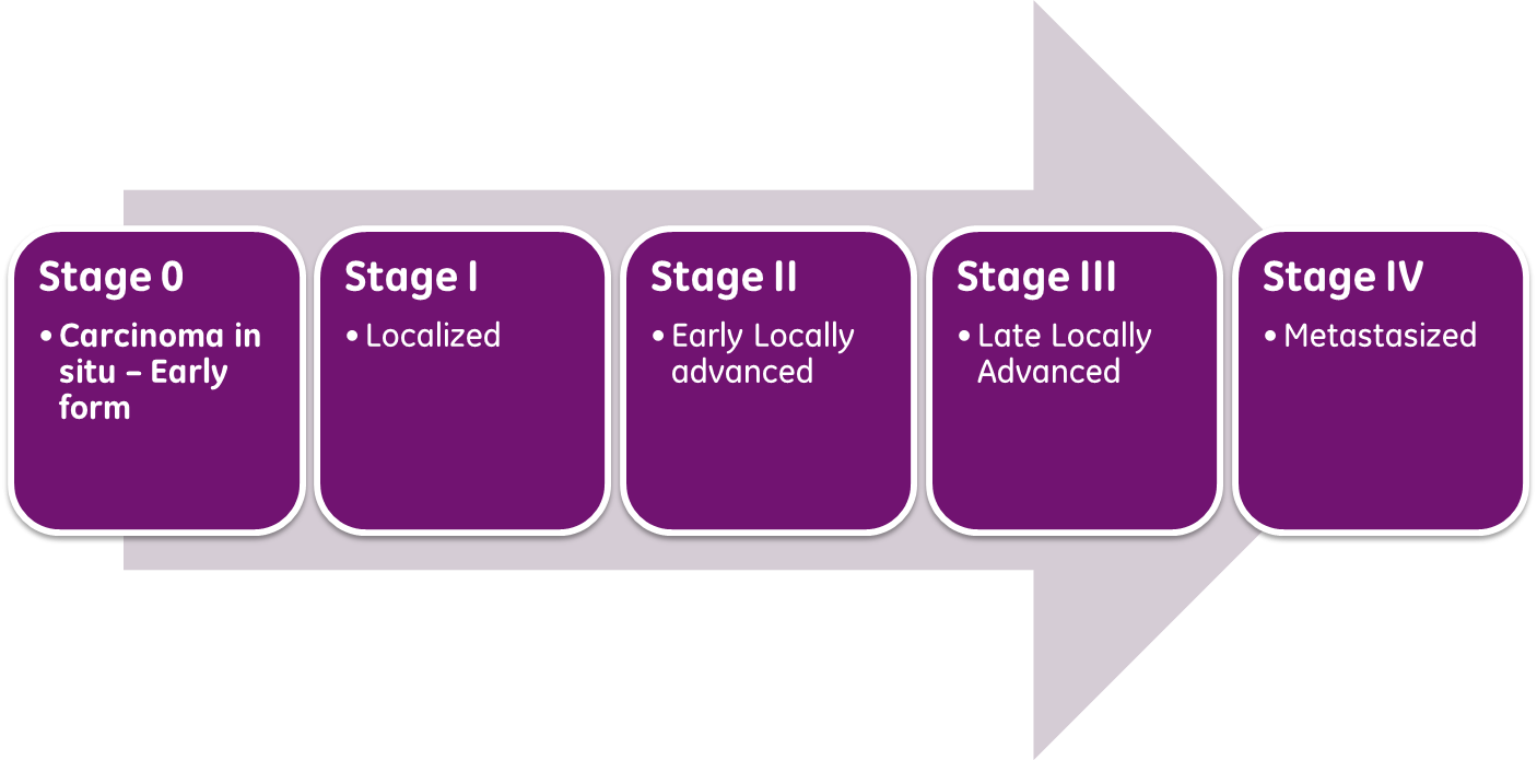 an analysis of the stages treatments and prognosis of breast cancer Breast conservation therapy (bct) was recommended as the treatment of choice for women with early-stage breast cancer (stage i or ii) by the national institutes of health in 1990 1 currently, about 60% of patients with early-stage breast cancer undergo bct 2-5 these recommendations were based on several randomized controlled trials.